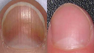 Before and After Nail Fungus Treatment