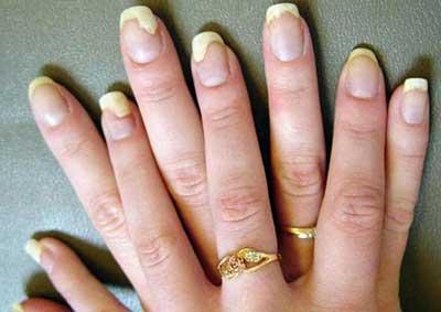 Women with Nail Fungus Symptoms
