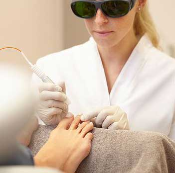Laser Therapy for Yellow Nails