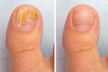 Nail Fungus Symptoms